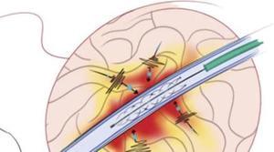 Científicos australianos desarrollan un dispositivo para volver a caminar