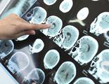Los niveles de glucosa en el cerebro podrían predecir si una persona saldrá del coma