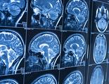 Una inteligencia artificial diagnostica el Alzheimer diez años antes de que aparezcan síntomas