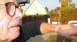 Apple Watch produce quemaduras graves en la muñeca de un hombre danés